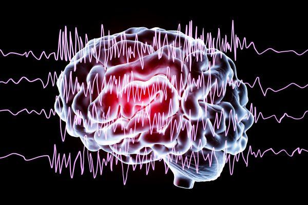 Crise d'épilepsie que faire : les bons gestes à faire